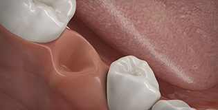 Knochenaufbau nach Zahnverlust