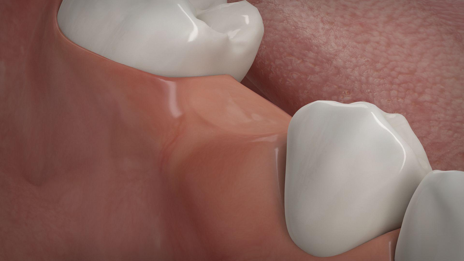 Knochenaufbau Rückbildung, Zahnarzt Düsseldorf, Dr. Tabatabaie & Kollegen