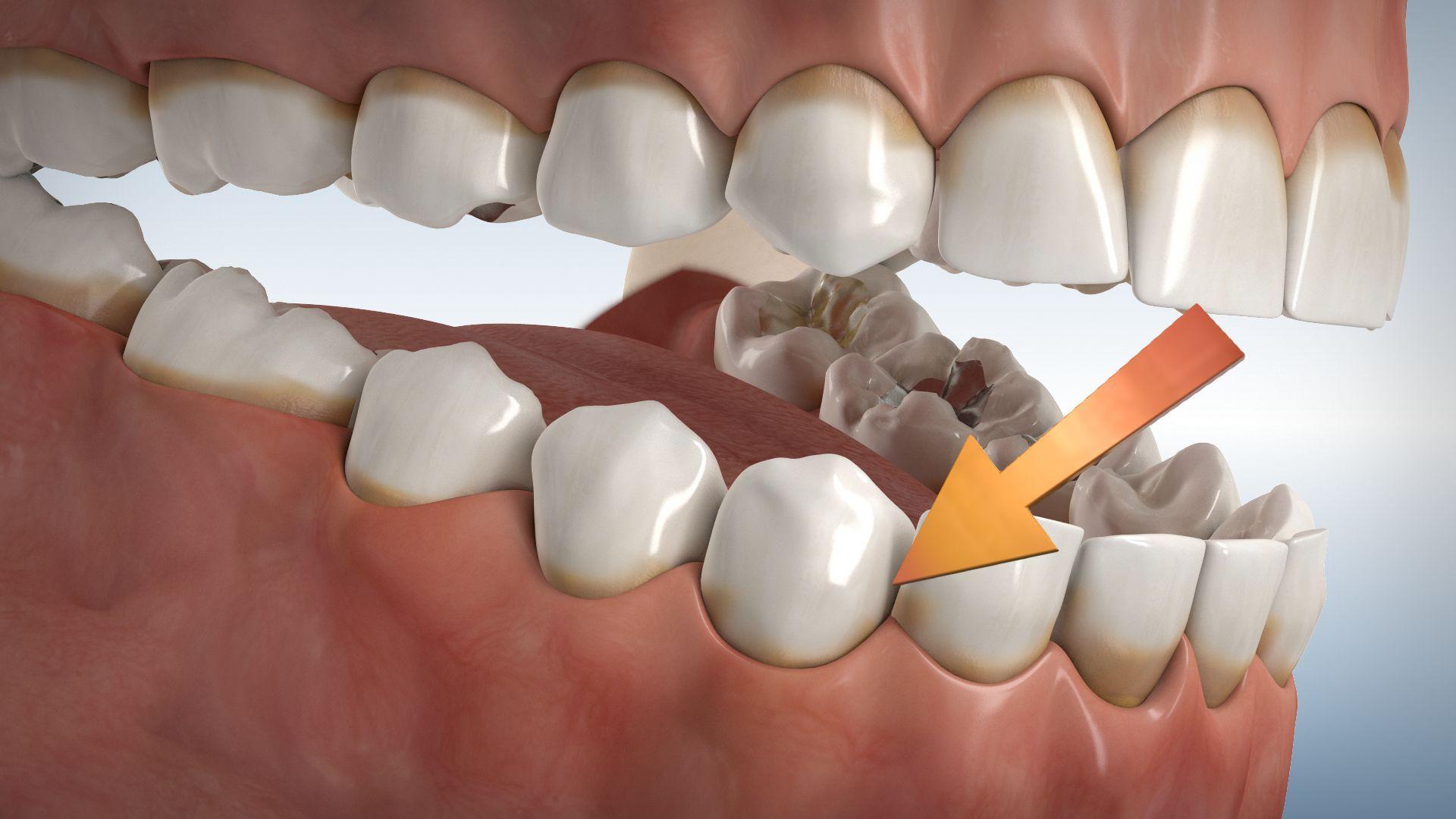 ÜProfessionelle Zahnreinigung, Zahnarzt Dr. Tabatabaie